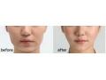 荆州医院:颊脂垫手术术后多久可以洗脸?