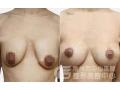 荆州医院做乳房下垂矫正手术收费多少?