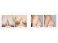 荆州哪家医院做乳房下垂矫正效果最好?