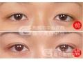 荆州医院:为什么上睑下垂不能做双眼皮手术矫正?
