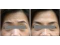 荆州医院:眉间川字纹如何治疗效果*好?