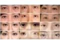 荆州医院:激光祛眼袋效果永久吗?