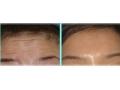 荆州医院:祛除抬头纹选择玻尿酸填充、注射除皱针还是激光祛皱?