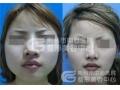 荆州医院:瘦脸选择面部吸脂还是注射瘦脸针?