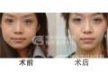 美容院注射的瘦脸针和荆州医院的瘦脸针有什么区别吗?