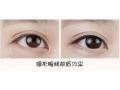 荆州做纹美瞳线价位线是多少?