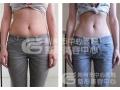 荆州医院腰腹部吸脂2800一个部位术后会不会反弹?
