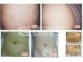 剖腹产术后疤痕可以做激光祛疤吗?