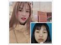 分享荆州最好的医院做双眼皮+开眼角全过程对比图