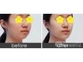 玻尿酸丰下巴效果和瘦脸针一样吗?
