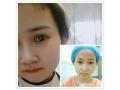 【整形日记】分享我在荆州割双眼皮手术全过程 附对比图