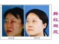荆州哪里可以治疗面部红色胎记?