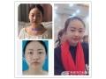 分享荆州真人全切双眼皮开眼角恢复一个月前后对比图日记