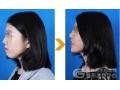 荆州玻尿酸注射下巴用什么什么牌子?能维持一年吗?
