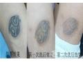 激光洗纹身过敏可以做超皮秒洗纹身吗?