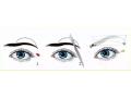 做完切眉手术术后眉毛还能长出来吗?