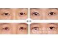 荆州医生讲解:上睑下垂术后眼睛合不拢是正常现象吗