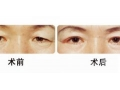 【董洁主任讲解】上睑下垂手术和双眼皮手术的区别