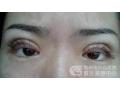 怎样判断自己需不需要做双眼皮修复手术?
