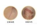 疤痕体质可以在荆州做激光祛疤吗?
