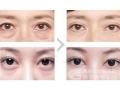 手术祛眼袋选择荆州哪位医生?