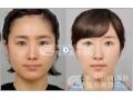荆州做去颊脂垫手术费用是多少?
