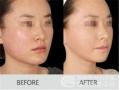 荆州做颊脂垫手术术后需要恢复多久?