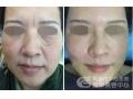 做完面部线雕术后多久可以化妆?