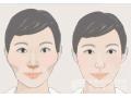 颧骨凸出荆州可以做颧骨整形手术吗?