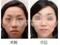 面部做完激光美白术后要如何预防红血丝的再生?