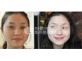 皮秒激光祛斑费用是多少?