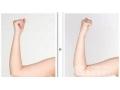 瘦手臂选择注射保妥适还是吸脂手术?