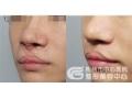荆州医院做兔唇手术找哪位医生?