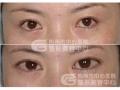 荆州医院单开内眼角手术费用是多少?