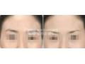 荆州做切眉手术多少钱?术后会留疤?