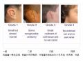 荆州医院董洁主任做耳畸形手术费用是多少?