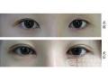 荆州做开眼角修复手术会留疤吗?