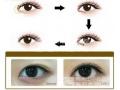 开眼角修复手术能做几次?