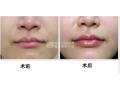 荆州医院讲解:为什么玻尿酸丰唇术后不能化妆?