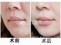荆州做玻尿酸丰唇需要几只玻尿酸?一只玻尿酸多少钱?