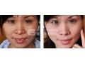 激光祛除黄褐斑术后复发的机率高不高?