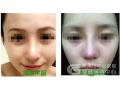 如何判断隆鼻假体是否到时需要取出?