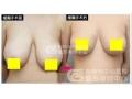 未成年女性可以做巨乳缩小手术吗?有什么需要特别注意的?