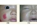 荆州医院治疗红色胎记效果好吗?