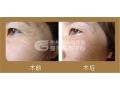 荆州祛鱼尾纹手术效果*持久的方法