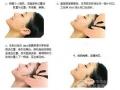 做面部线雕疼吗?荆州医院董洁主任做面部线雕效果好吗?