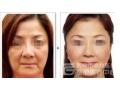 面部线雕术后需要恢复几天?有没有肿胀情况?