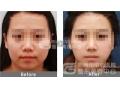 去颊脂垫瘦脸手术适合哪个年龄段的人?