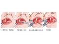去颊脂垫手术术后留疤或者凹陷了怎么办?