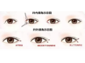 内双做开眼角手术选择内眼角还是外眼角?